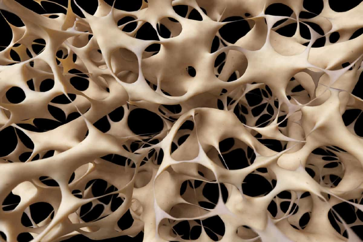 Osteoporosis: The Hidden Disease That Affects Millions